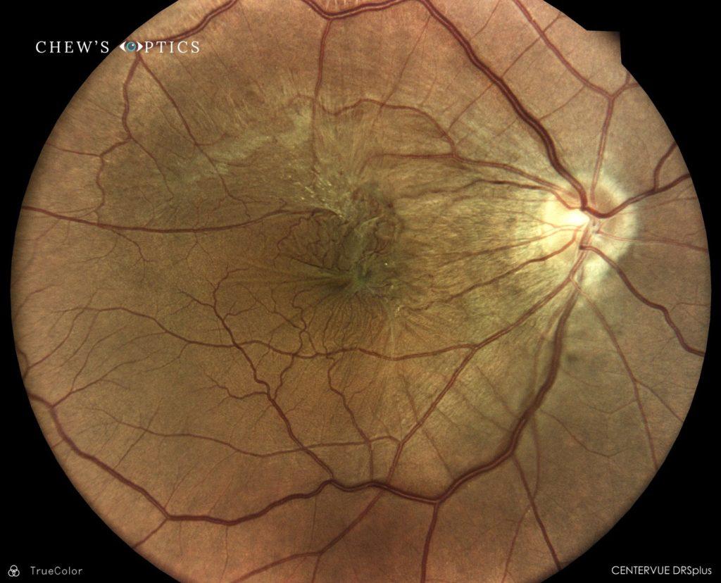 macular changes optometrist singapore