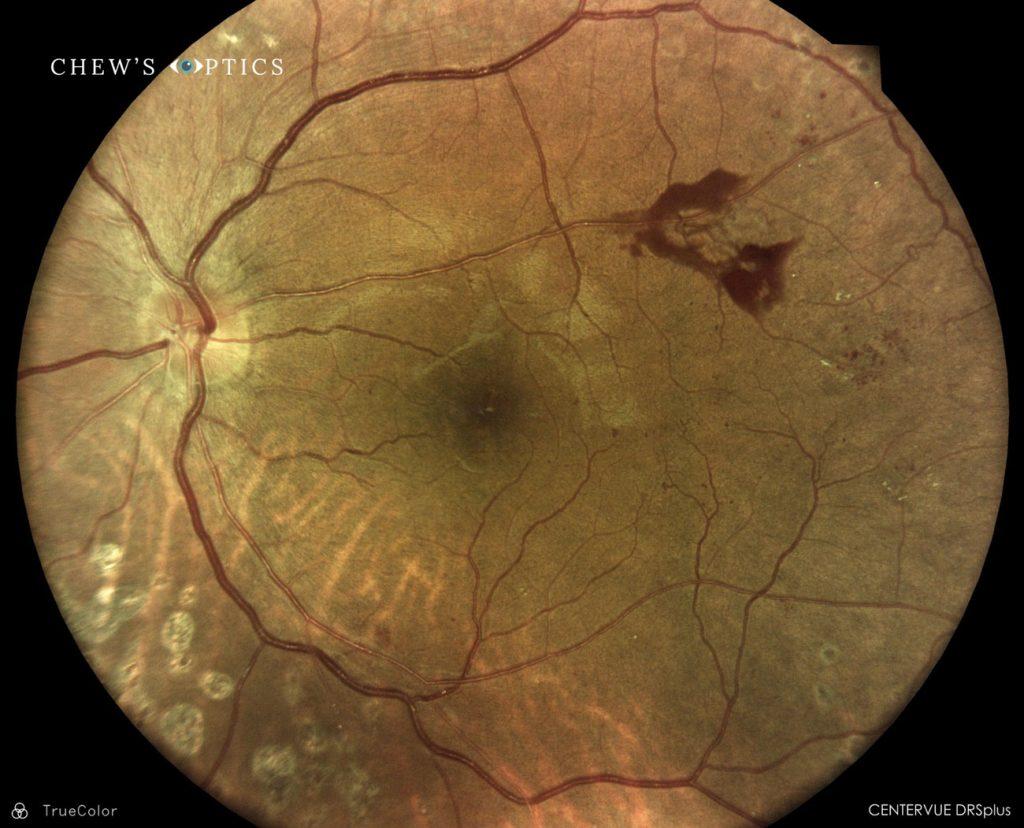 bleeding optometrist singapore
